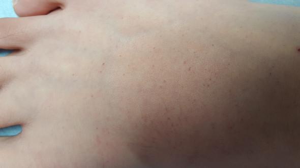 Nahaufnahme - (Füße, rote Punkte)
