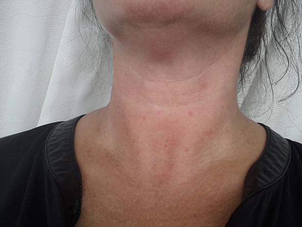 Flecken am Hals  - (Haut, Hals, Arm)