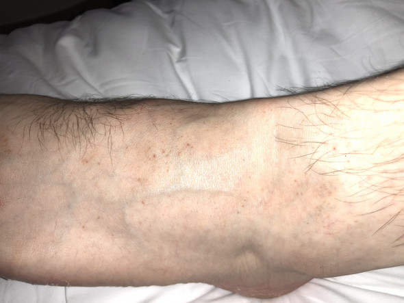 - (Haut, Dermatologie)