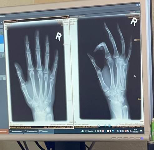 Kleiner Finger gebrochen?