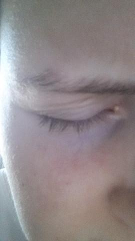 Knubbel - (Haut, Augen, Pickel)