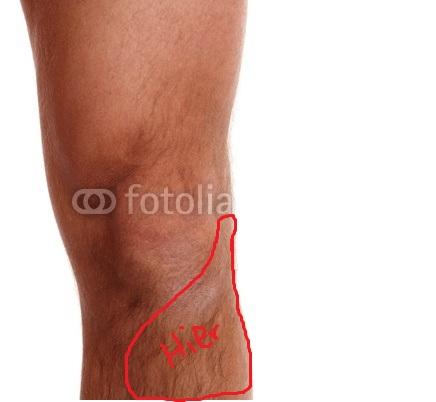 Knieschmerzen seit 1 Woche (Schmerzen, Arzt, Medizin)