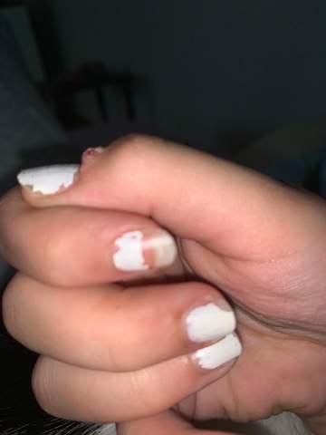 Knoten am finger?