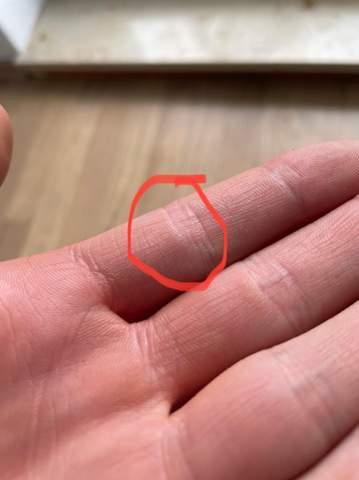 Knubbel am Finger?