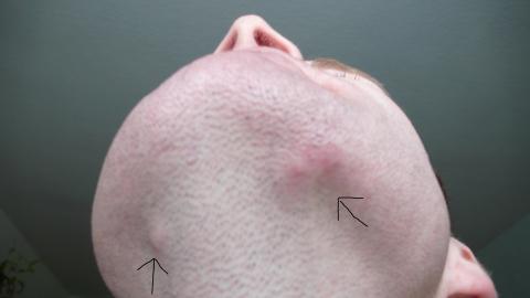Harter knubbel am hinterkopf
