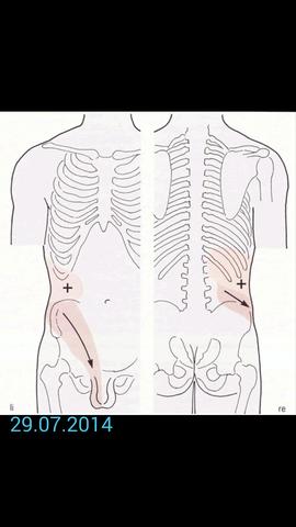 Können Eierstöcke krampfartige Schmerzen wie Periode hervorrufen?