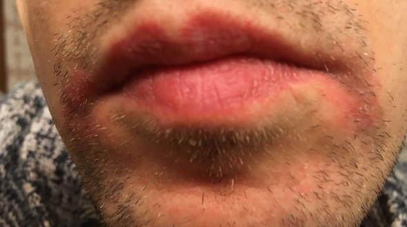 Rote Stellen um neben den Mund - (Gesicht, rote Flecken, mundrose)
