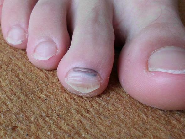 Fußnagel - (Hautkrebs, hautarzt)