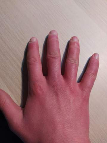 komische Hautprobleme?