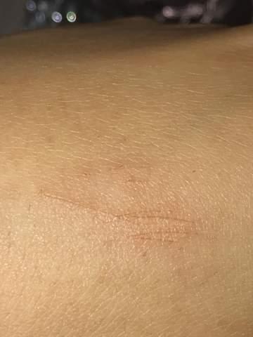 Komische Kratzer an meiner Hand?