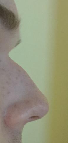 Meine Nase im Profil - Sieht leicht eingedrückt aus - (Nase, Chirurgie)