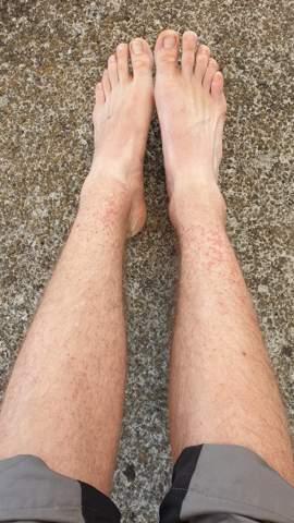 Komischer Ausschlag an beiden Beinen?