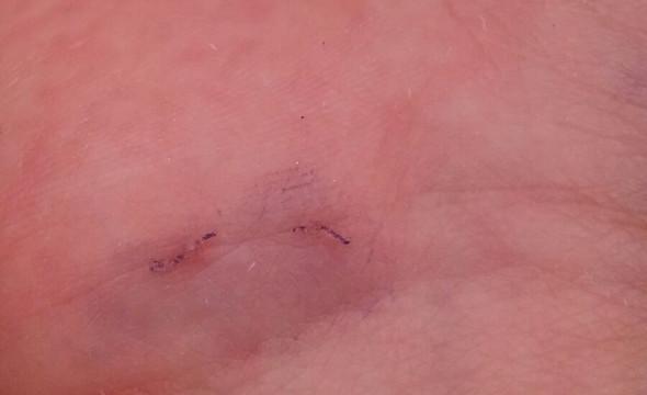 Kanal 1- Mit blauer Tinte eingefärbt - (Haut, Juckreiz, Dermatologie)