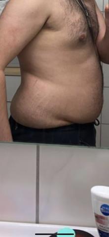Abnehmen haut kg 40 Schlaffe Haut