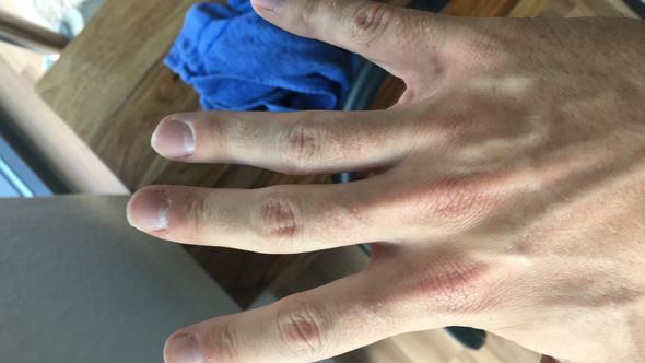 Bekommt man mit der Zeit krumme Finger von falscher Maus (berufsbedingt viel am PC)?