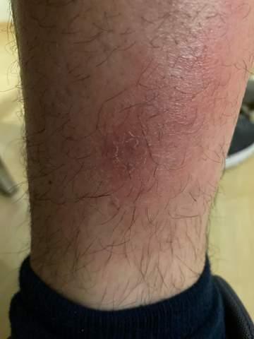 Leicht rote, juckende Stelle am Bein / an der Wade?