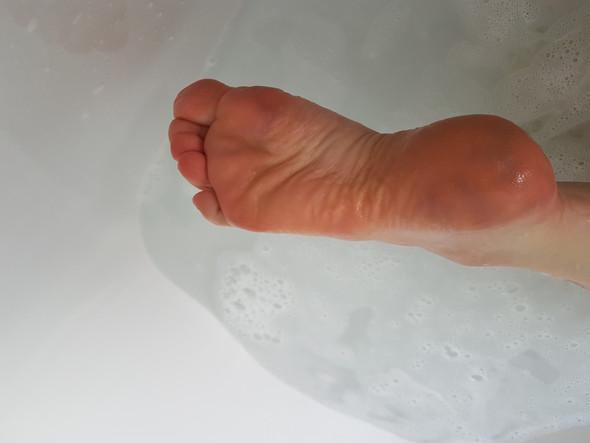 siehe dunkle Flecken auf den Füßen - (Haut, Füße, Dermatologie)
