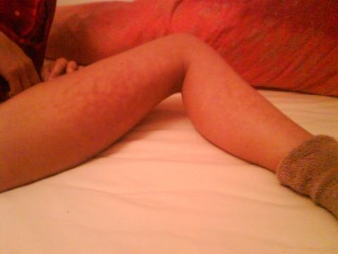 - (Ursache, Beine, Diagnose)