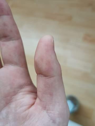 (Lila/blaue) Flecken auf der Hand?