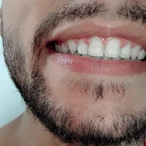 Linien nach Zahnspange?