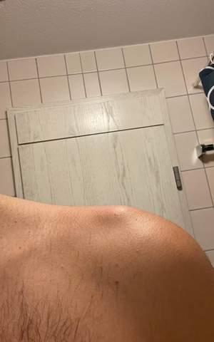 Linke Schulter/Oberarm schmerzt und mini beule was ist da (Bild)?