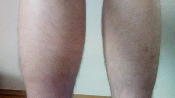 Linke Wade deutlich dicker: Orthopäde hat keine Ahnung und was jetzt?