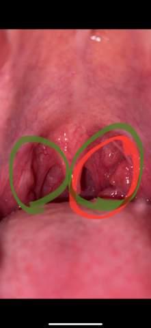 Loch im Rachen + Mundgeruch?