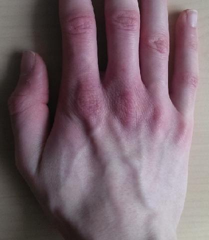 Mangelndes Unterhautfettgewebe - Gelenk ist stark zu sehen