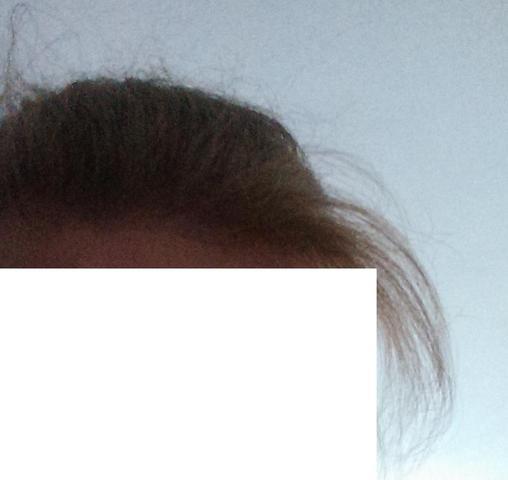 Meine Haare (zusammengebunden) - So sollte es nicht aussehen - (Juckreiz, Haare, Kopf)