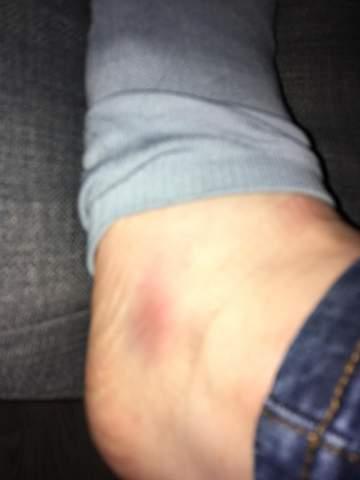 Mein Fuß ist blau nach dem laufen. Warum?