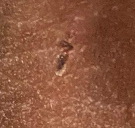 Mein Penis sieht sehr ungesund aus hilfe?