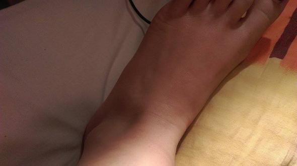 Schwellung.  - (Füße, Schwellung, Beine)