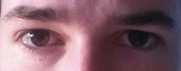 Mein rechtes Auge ist weiter unten als das linke. Weiß jemand ob das was schlimmes ist bzw. ob ich damit zum Augenarzt gehen sollte?
