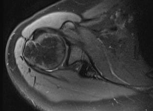 Lässt sich anhand dieser MRT-Bilder eine Entzündung der Schulter feststellen oder nicht?