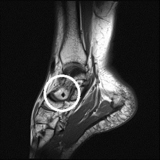 Mrt Aufnahme Sprungelenk - (Sprunggelenk, MRT, Knochen)