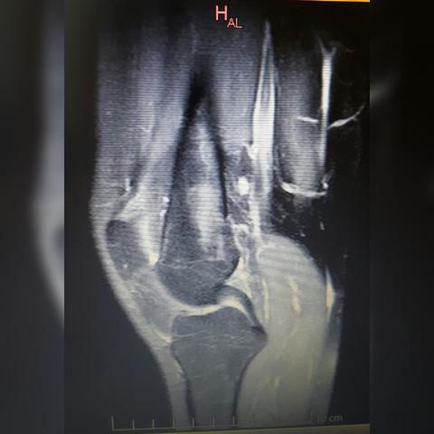 Knie mrt links - (Knie, MRT, Befund)