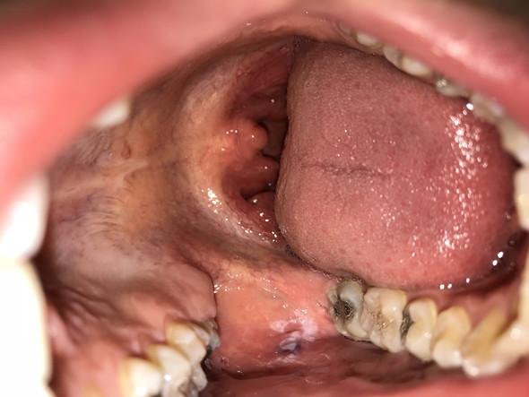 Mundhöhlenkrebs oder Bissstelle?