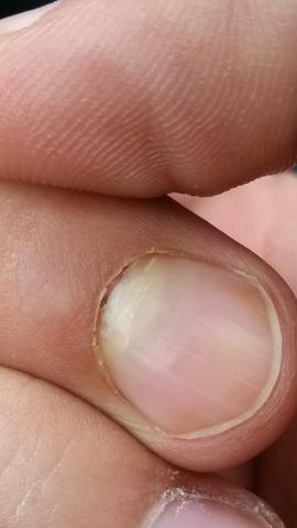 Nach Nagelbettentzündung löst sich der Nagel vom Nagelbett auf?