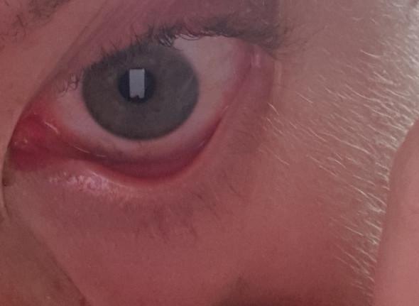 Nach schlaf rote Augen?