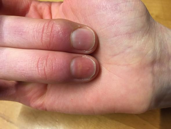 - (Entzündung, Fingernägel)