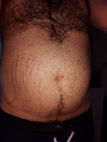 Narben am Bauch behandeln wegen Übergewicht?