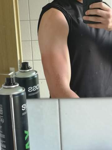 Narbengewebe im Muskel?