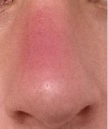 Nase geschwollen, rot und tut sau weh (Pickel)