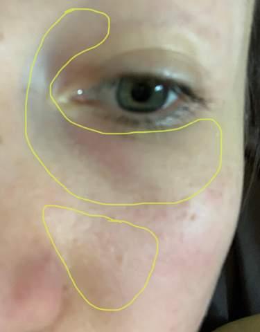 Nasennebenhöhlenentzündung oder was kann das sein?
