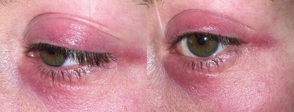 - (Augen, Entzündung, Neurodermitis)
