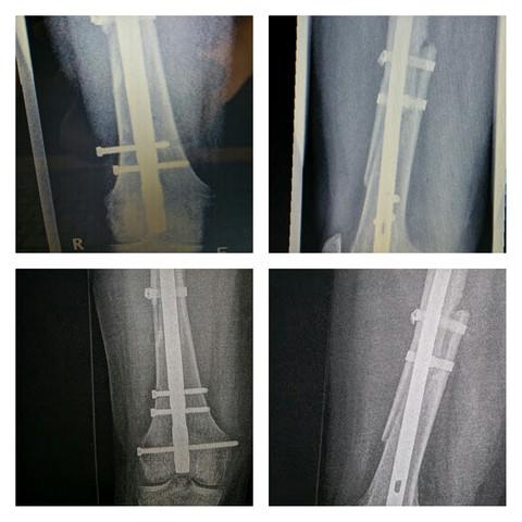 Oberschenkelspiralfraktur. ..verzögerte Knochenheilung nach 22 Wochen ?