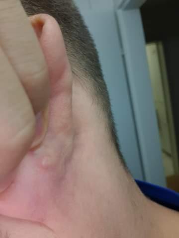 Pickel hinter dem Ohr, was könnte das sein?