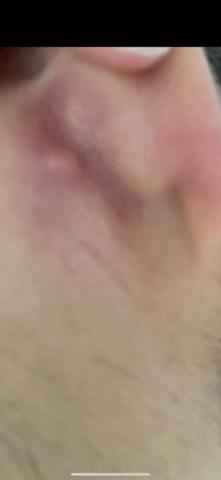Pickel hinterm Ohr ?
