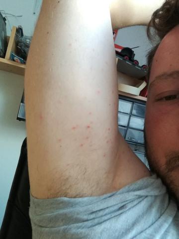 Oberarm - (Haut, Pickel, Dermatologie)