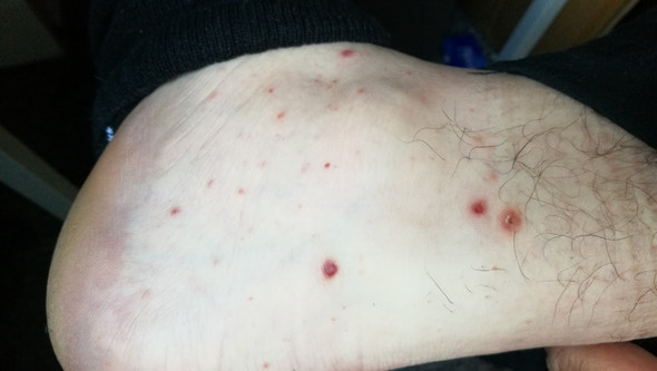 Knöchel - (Haut, Pickel, Dermatologie)
